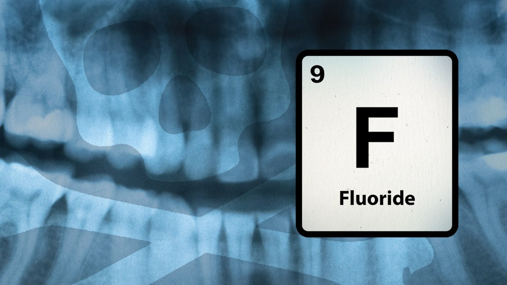 The Actual Truth About Fluoride