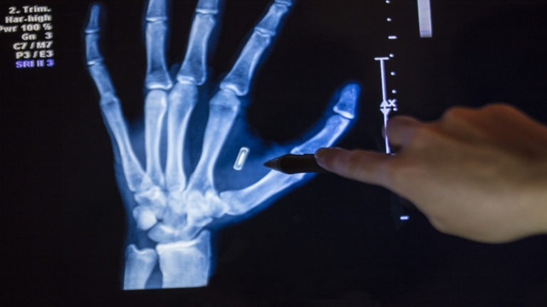 A stock photo of an X-Ray of a human hand with an RFID Microchip implanted between the thumb and forefinger. Digitally edited/retouched image. Photographed using the Canon EOS 5DSR at 50mp.